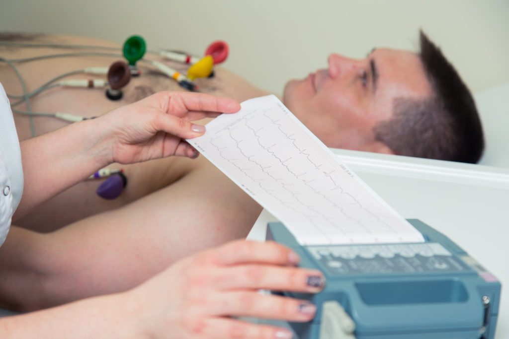 Female doctor analyzing ECG electrocardiogram of patient in hospital.